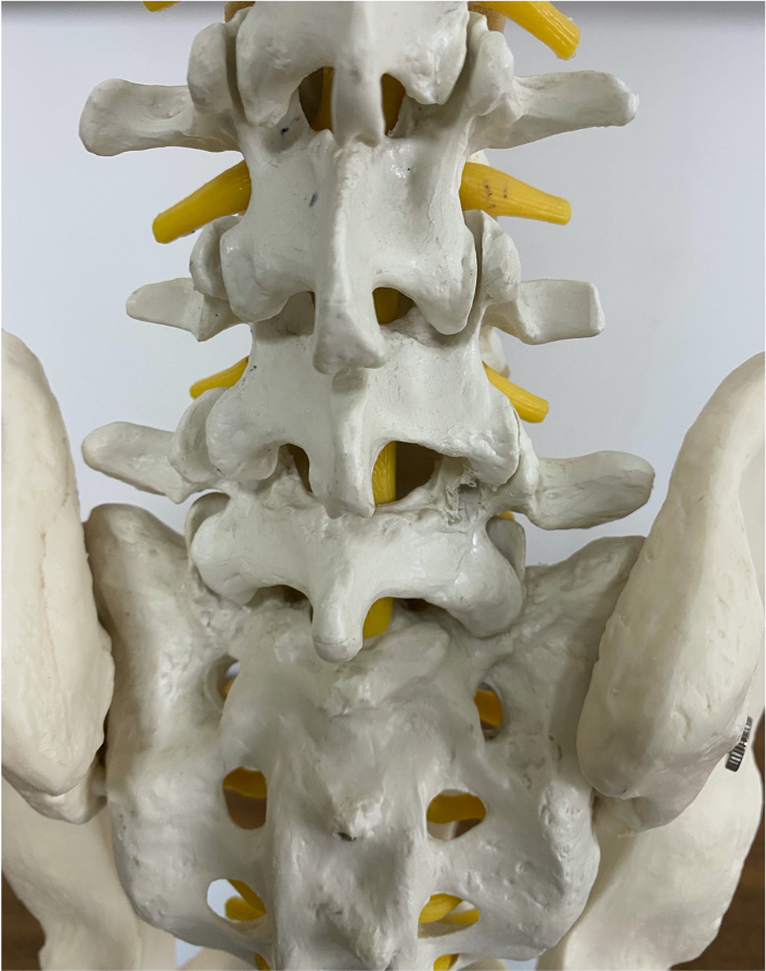 Facet joint inflammation causes Back pain