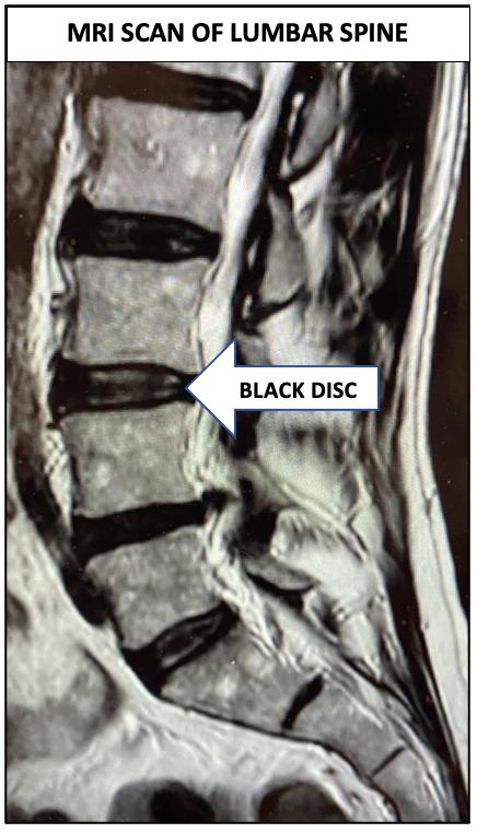 Lumbar Disc Degeneration causing Back pain