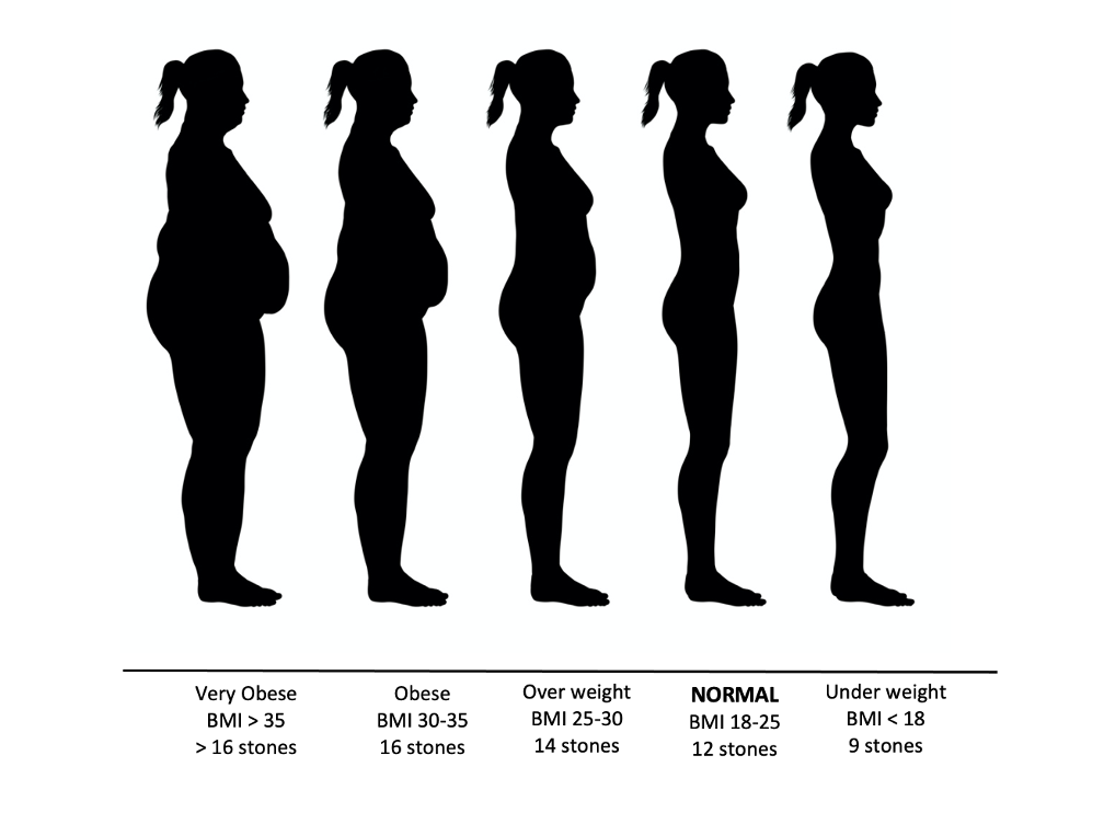 Weight gain in Women causes Back pain